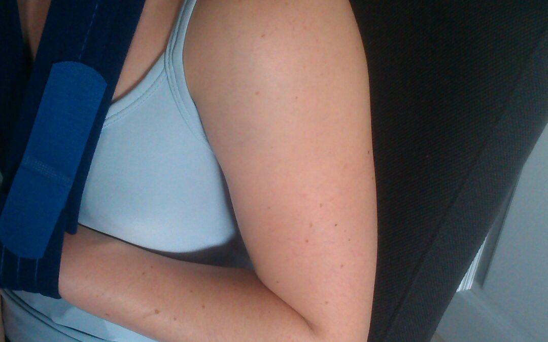 Ruiter revalidatie na schouderbreuk